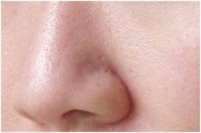grove poriën verfijnen huid structuur haarlem beauty lounge huidspecialist