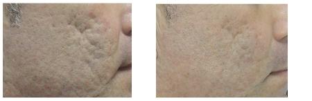 resultaat laser bij litteken acne. voor en na noord holland en zuid holland
