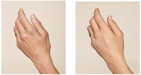 Handen huid. jonger mooiere hand pigment ouderdomsvlekken Haarlem