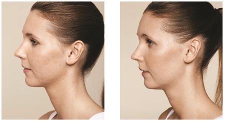 acne littekens verwijderen. egalere huid Haarlem amsterdam botox fillers