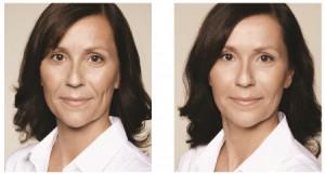 filler botox cosmetisch arts haarlem amsterdam