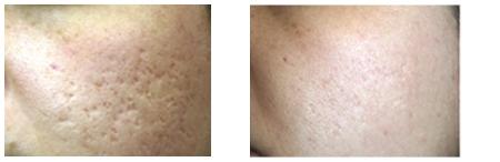 Laser, acne littekens verwijderen voor, na Beauty Lounge Haarlem Amsterdam