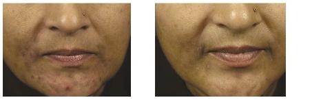 acné huid behandeling haarlem amsterdam beauty lounge