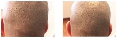Mannen hoofdhaar permanente make-up. voor/na bij Beauty Lounge Haarlem. Medische Pigmentatie.