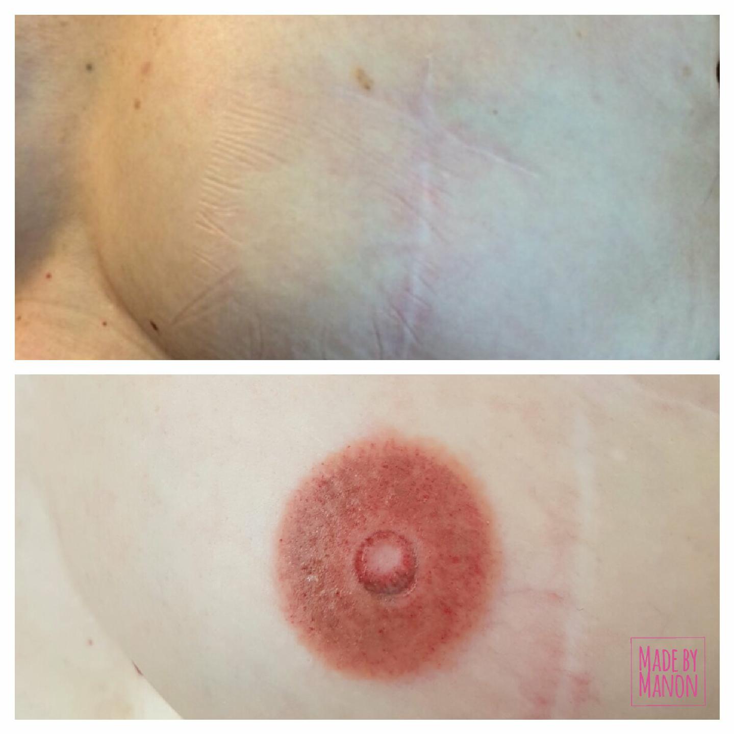 tepel borst permanente make up medische pigmentatie amsterdam haarlem alopecia