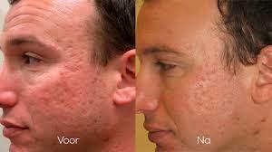 acne littekens verwijderen haarlem dermapen
