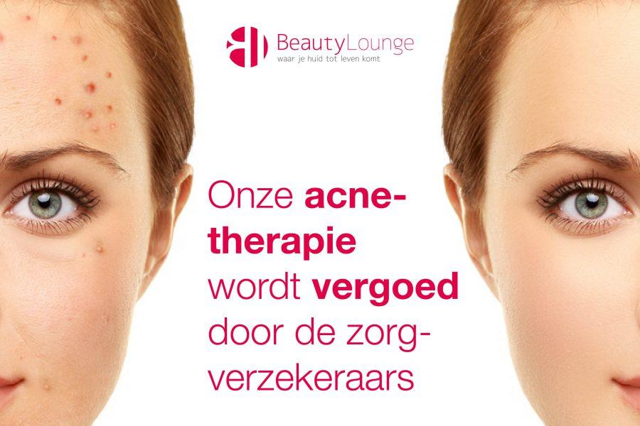 vergoeding acne haarlem bij beauty lounge