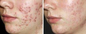 acne foto acne weghalen behandelen tca-peeling-cosmetique-totale haarlem