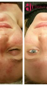 acne haarlem voor en na beauty lounge