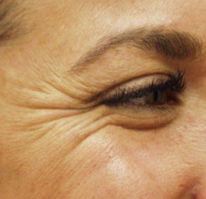 kraaienpootjes verwijderen botox haarlem fillers cosmetisch arts