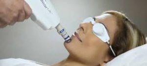 laser behandeling haarlem couperose acne en pigmentvlekken