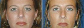 ooglidcorrectie,ooglift haarlem oogleden