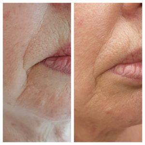anti aging mooiere huid HF