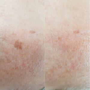 anti-aging pigment vlekkenop huid