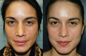 pigment vlekken weg me-line mooie huid huidverjonging
