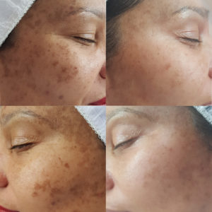 zonnevlekken meline pigment ouderdomsvlekken huid anti-aging noord holland