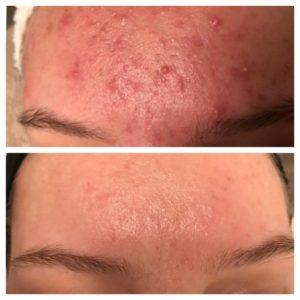 pukkels puist acne haarlem