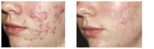 acne jeugdpuistjes pukkels huid