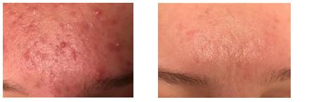 pukkels puistjes acne rode huid talg ijmuiden haarlem velserbroek