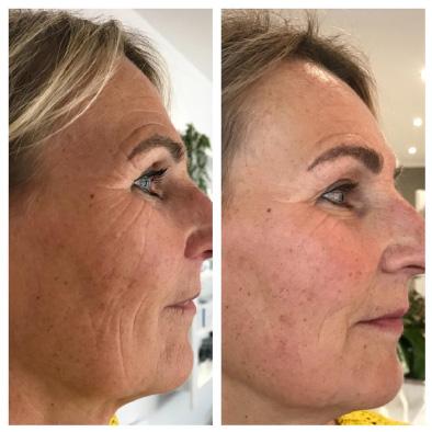 huidspecialist haarlem oudere huid tegengaan