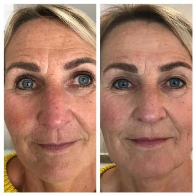 anti-aging behandeling huidverjonging anti rimpel