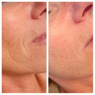gezichtsbehandeling 50+ anti-aging behandeling haarlem