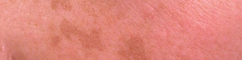 pigmentvlekken ouderdomsvlekken huidvlekken haarlem santpoort