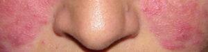 huidverbetering rosacea haarlem amsterdam