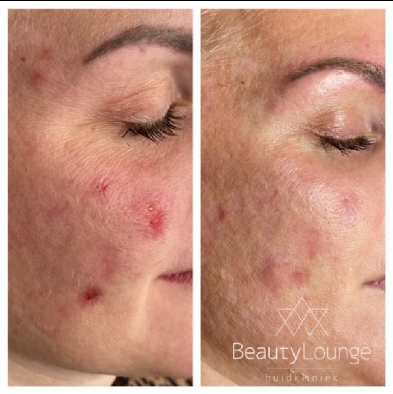 acne behandeling velserbroek haarlem bloemendaal
