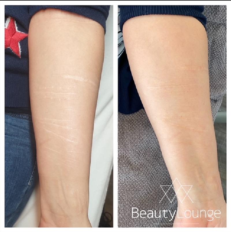 litteken armen manon wolbink permanente make up medische tatoeage