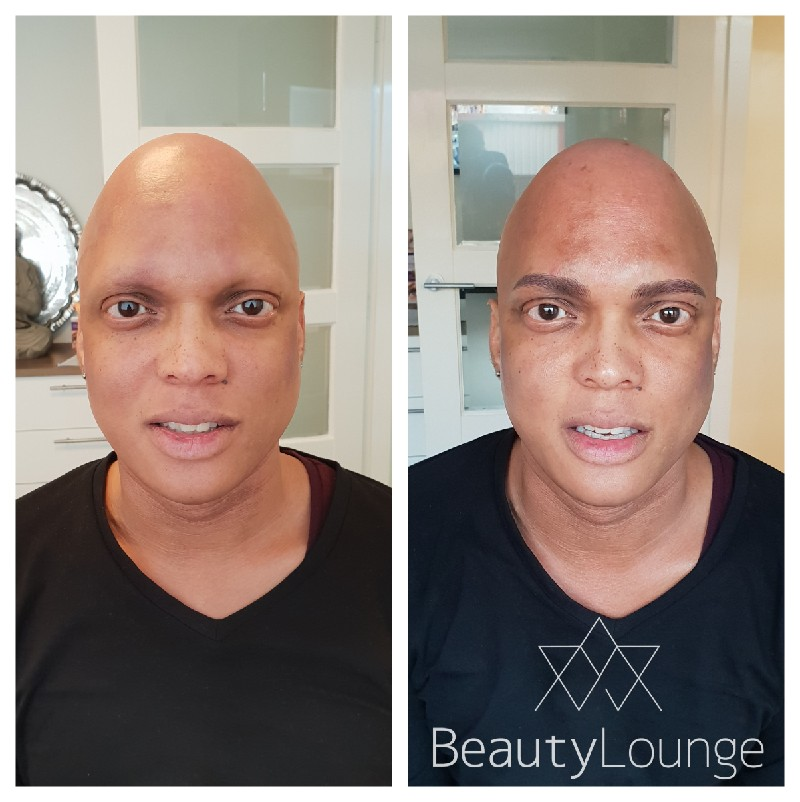 alopecia wenkbrauwen permanente make up manon wolbink haarlem