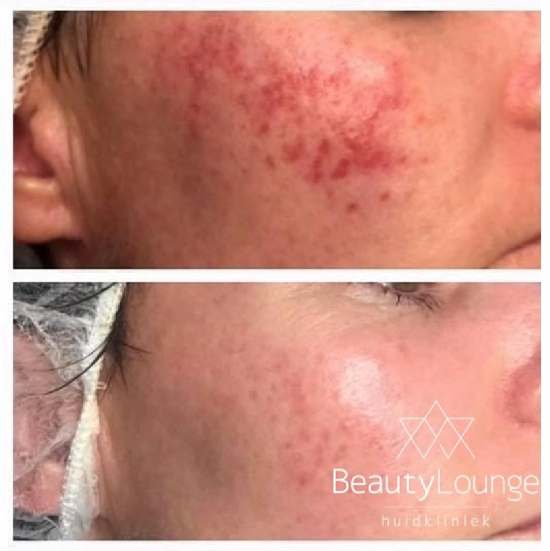 acne jongeren verwijderen weg haarlem