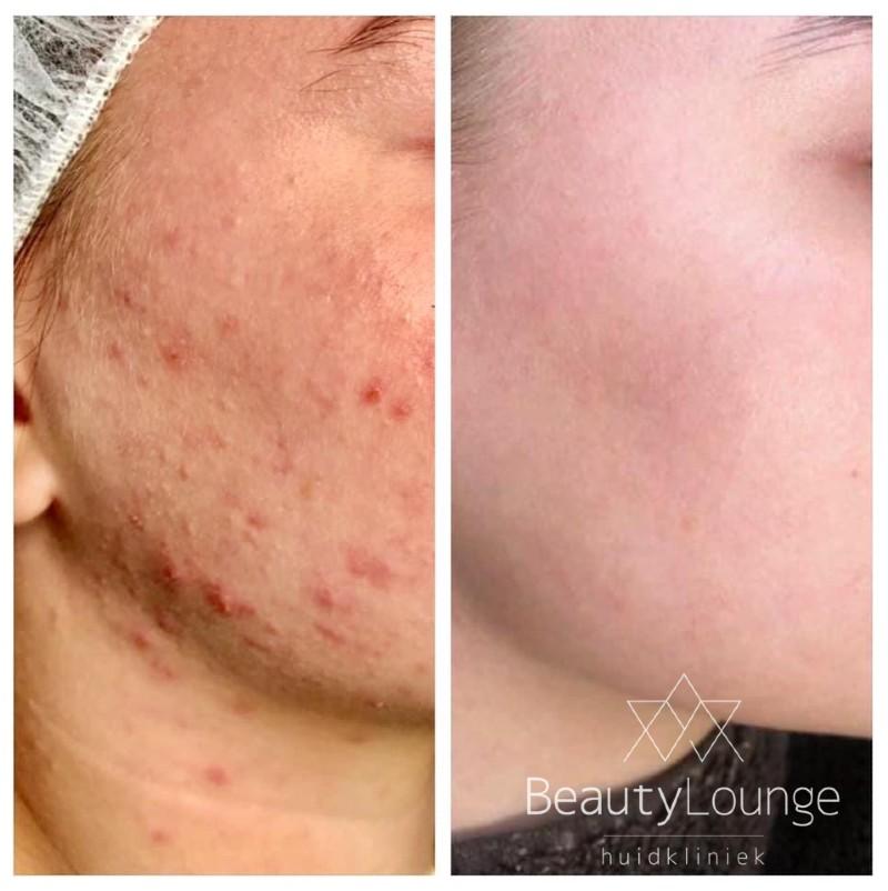 acne weg behandelen mooie huid