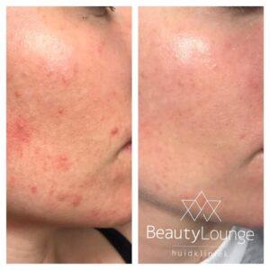 acne behandeling haarlem velsen voor na