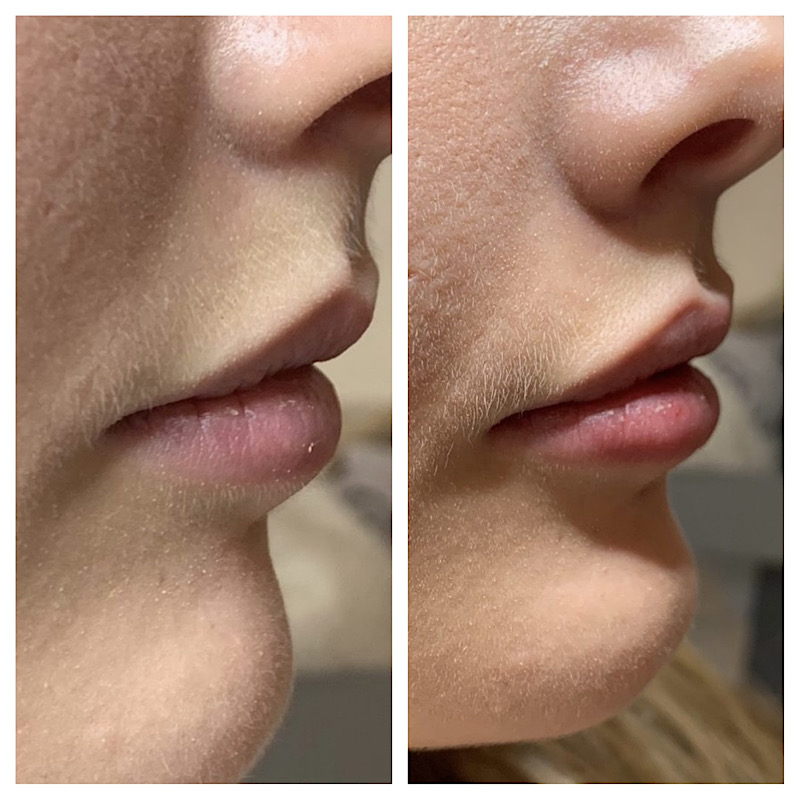 cosmetisch arts lippen botox filler haarlem amsterdam