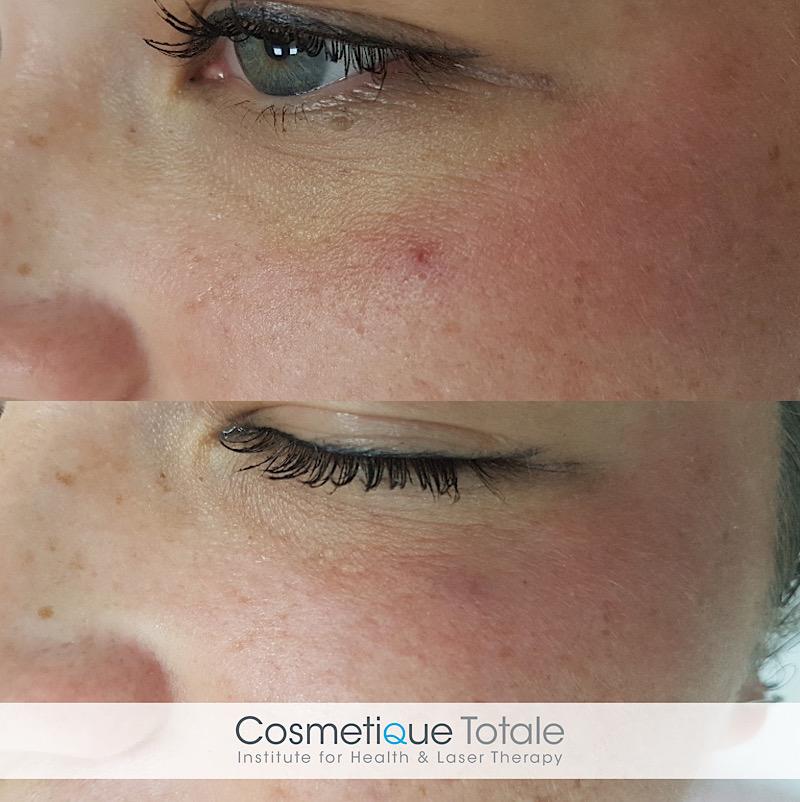laserbehandeling haarlem resultaat huid