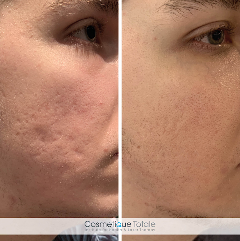 laserbehandeling acne littekens haarlem huid