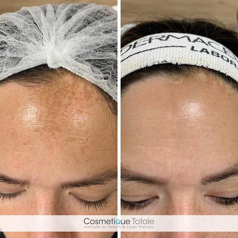 pigmentvlekken behandeling in haarlem regio gezicht