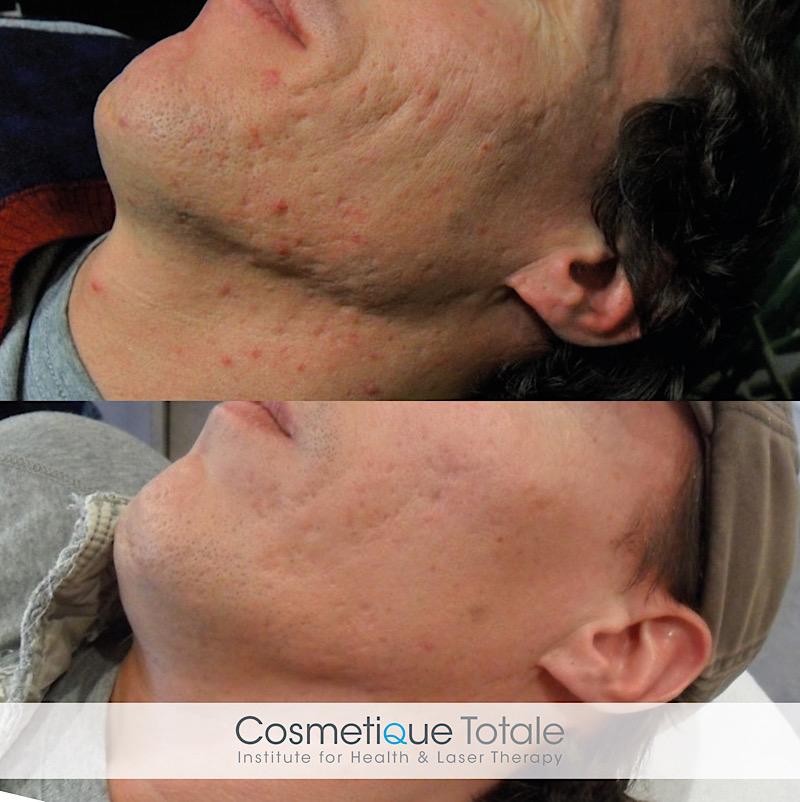 laserbehandeling rosacea couperose haarlem