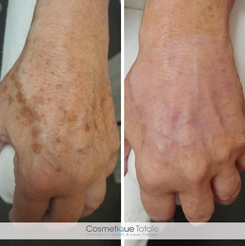 pigmentvlekken handen verwijderen behandelen haarlem amsterdam