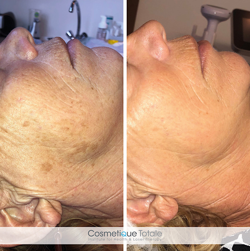 pigmentvlek verwijderen haarlem schoonheidssalon