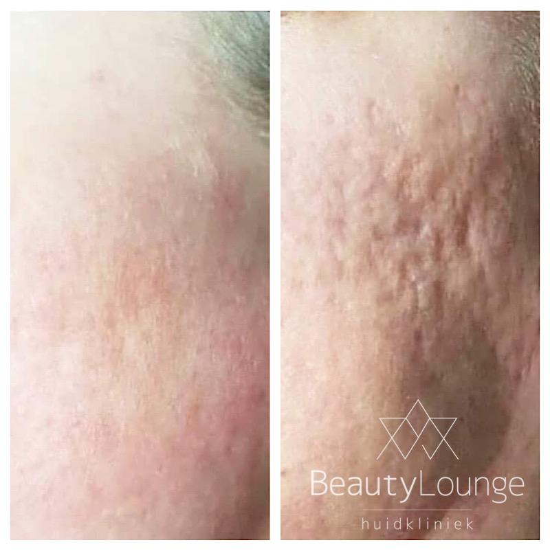 dermapen behandeling anti-aging jongere huid kraaiepootjes haarlem