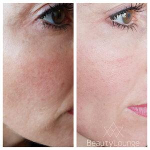 dermapen behandeling schoonheidssalon haarlem huid
