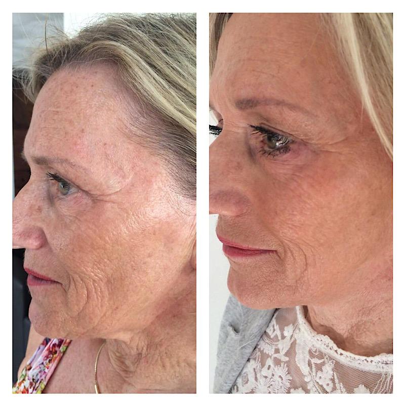 anti aging bindweefselmassage gezicht haarlem