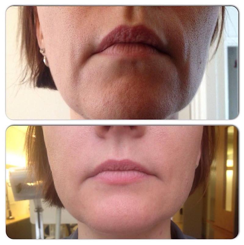 hangende mondhoeken anti aging haarlem